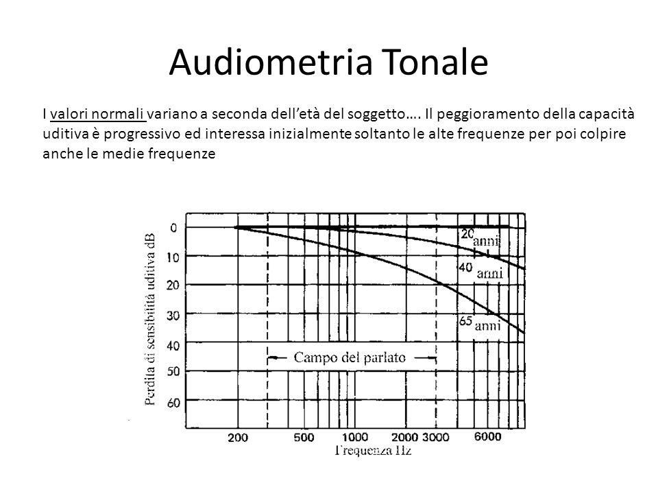 Audiometria Tonale I valori normali variano a seconda dell'età del soggetto…. Il peggioramento della capacità.