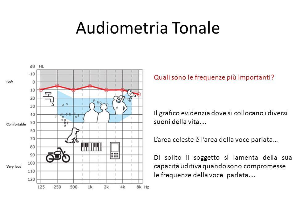 Audiometria Tonale Quali sono le frequenze più importanti