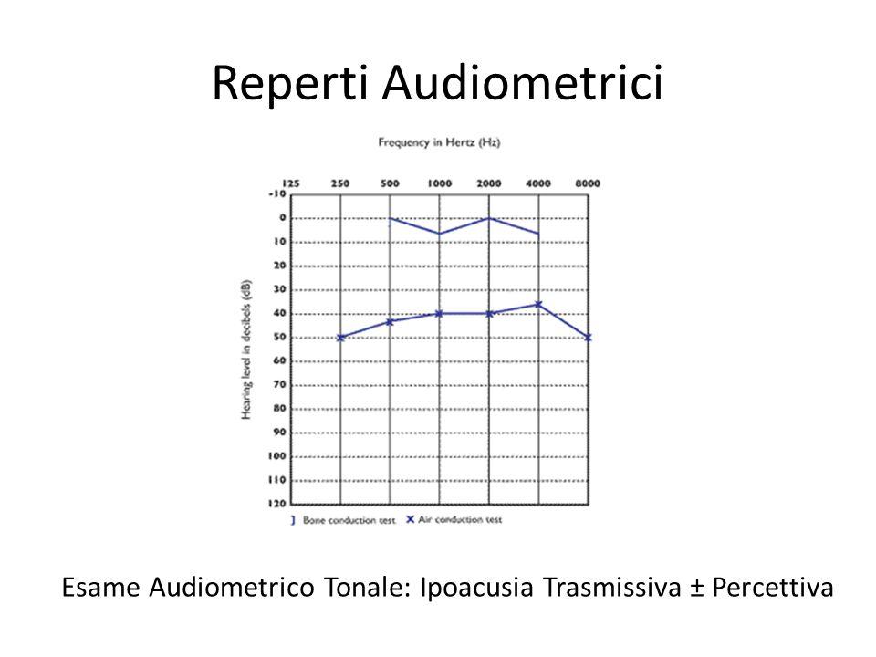 Esame Audiometrico Tonale: Ipoacusia Trasmissiva ± Percettiva