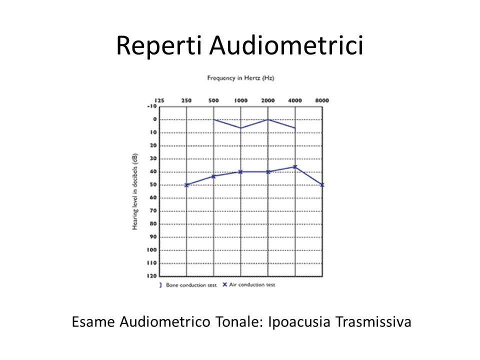 Esame Audiometrico Tonale: Ipoacusia Trasmissiva