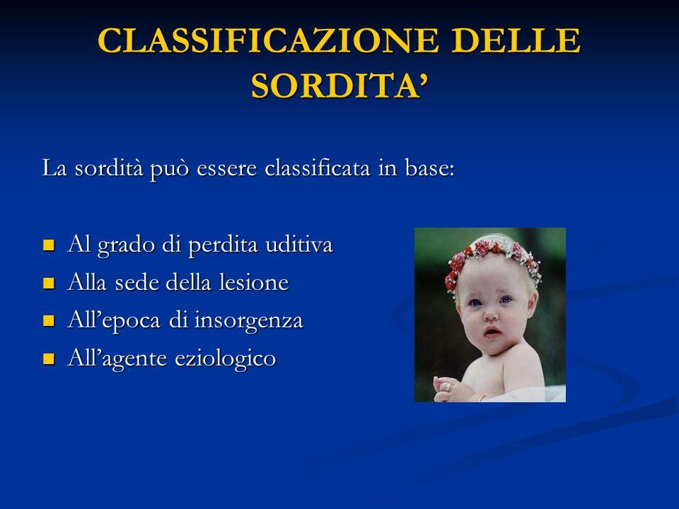 CLASSIFICAZIONE DELLE SORDITA'