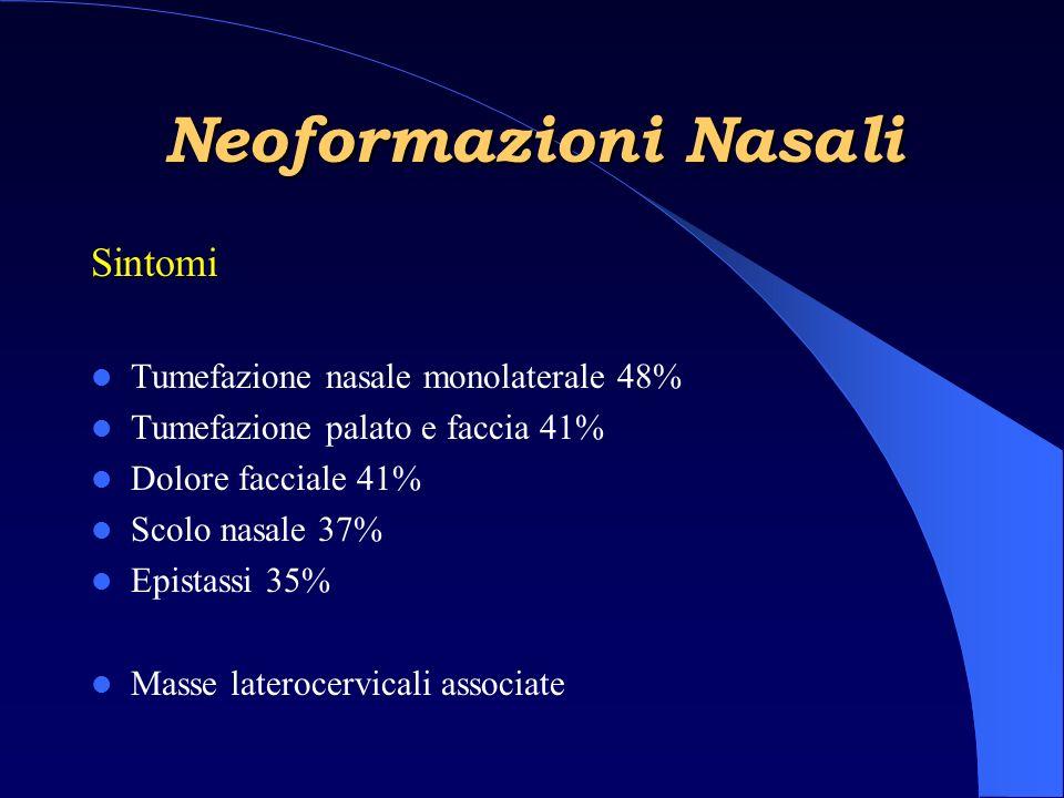 Neoformazioni Nasali Sintomi Tumefazione nasale monolaterale 48%