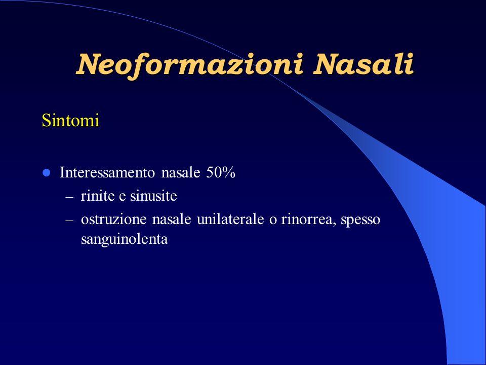 Neoformazioni Nasali Sintomi Interessamento nasale 50%