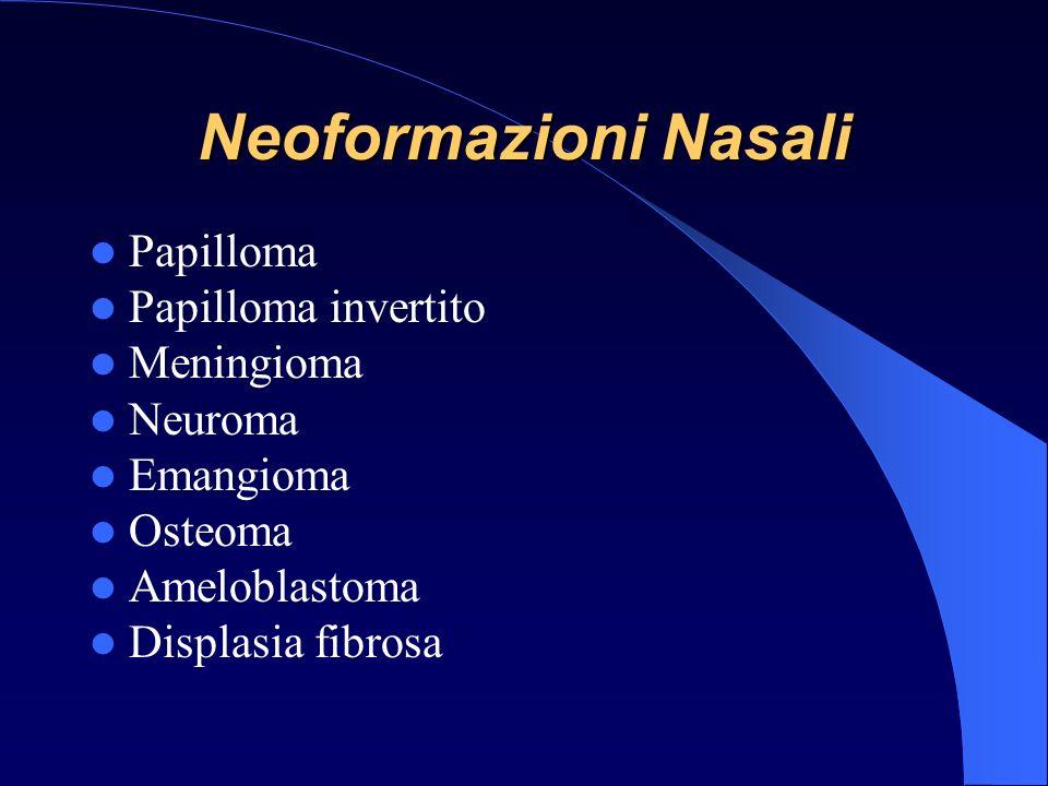 Neoformazioni Nasali Papilloma Papilloma invertito Meningioma Neuroma