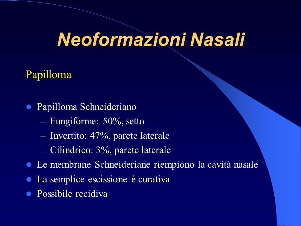 Neoformazioni Nasali Papilloma Papilloma Schneideriano