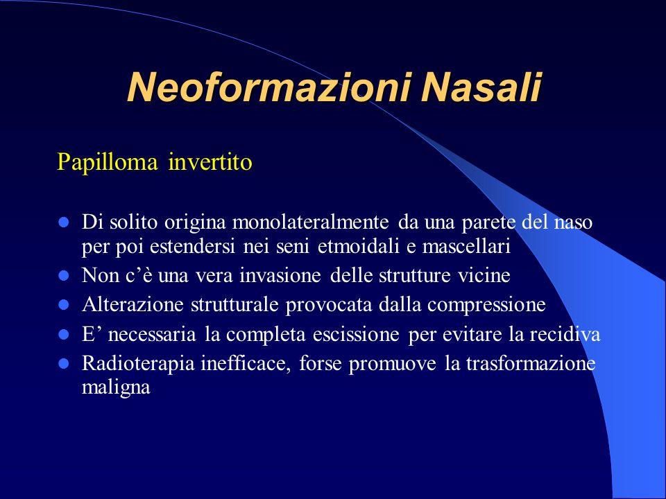 Neoformazioni Nasali Papilloma invertito