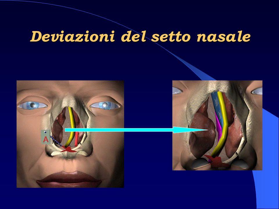 Deviazioni del setto nasale