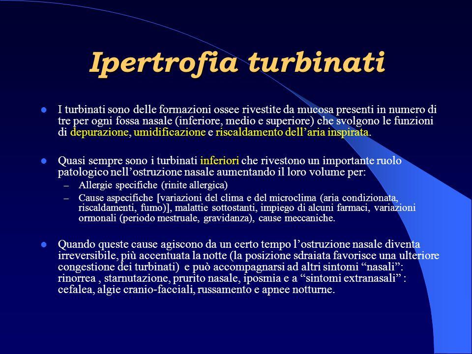 Ipertrofia turbinati