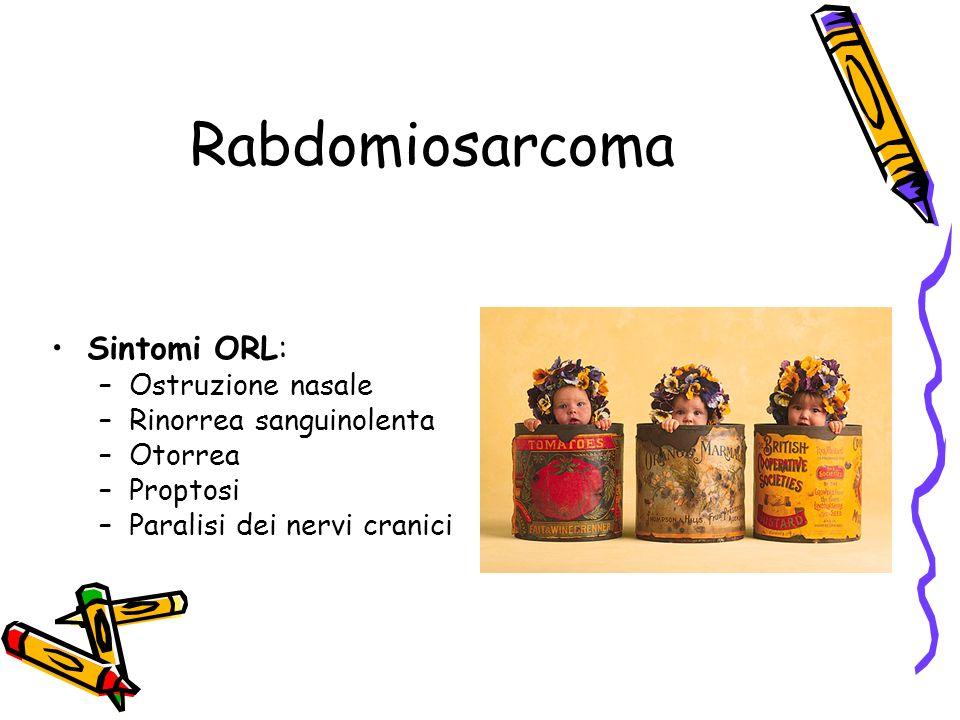 Rabdomiosarcoma Sintomi ORL: Ostruzione nasale Rinorrea sanguinolenta