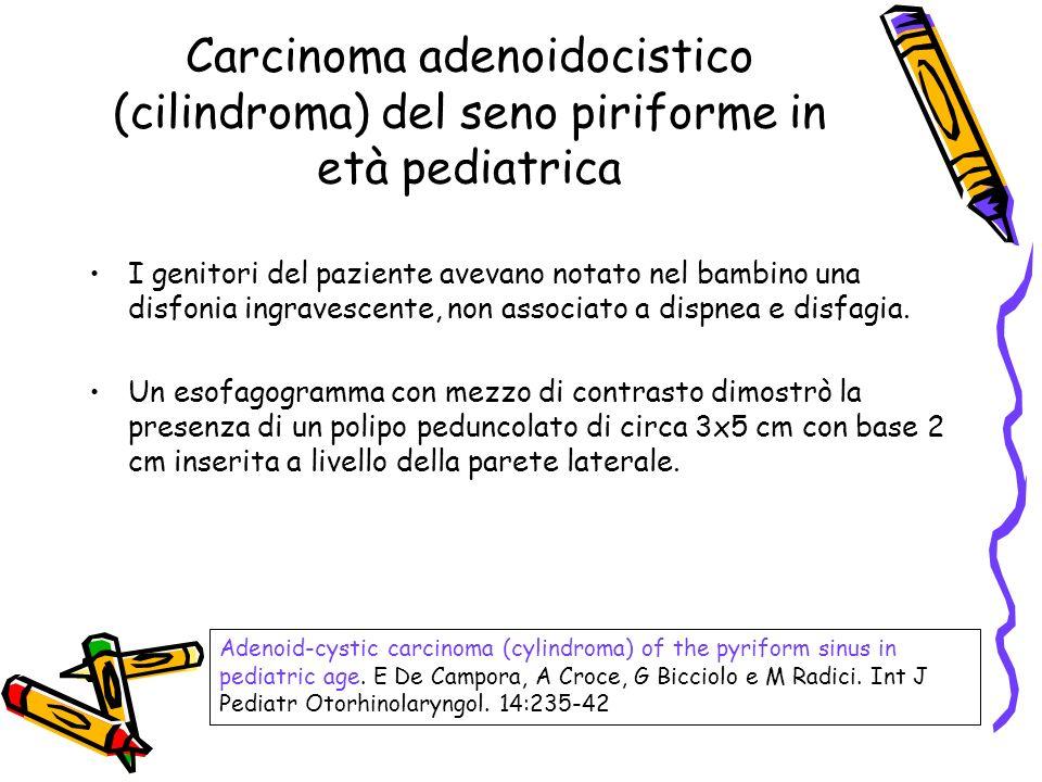 Carcinoma adenoidocistico (cilindroma) del seno piriforme in età pediatrica