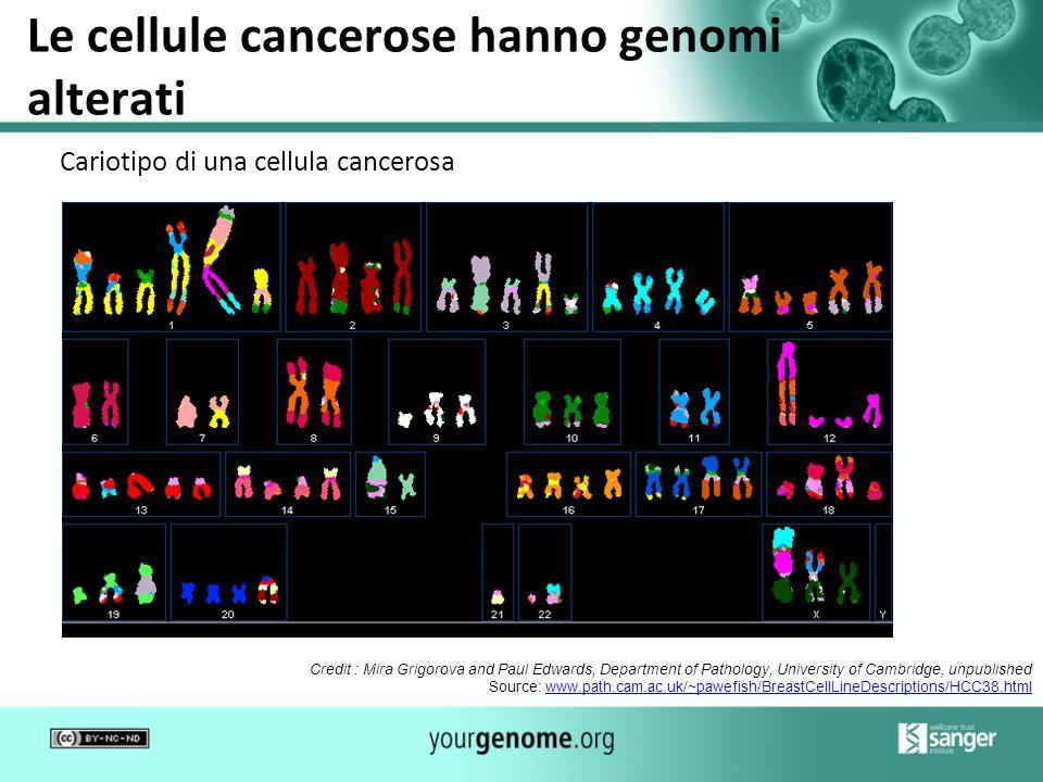 Le cellule cancerose hanno genomi alterati