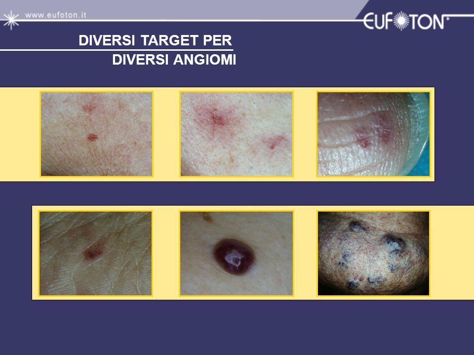 DIVERSI TARGET PER DIVERSI ANGIOMI In piccolo emoglobine