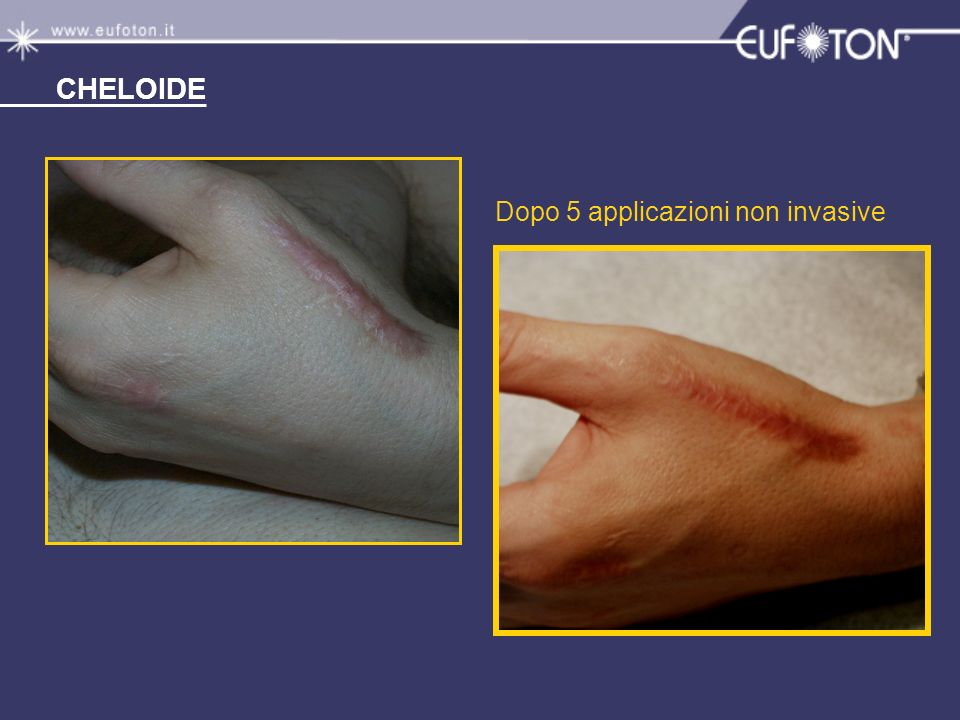 CHELOIDE Dopo 5 applicazioni non invasive