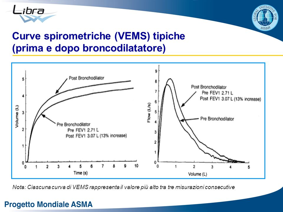 Curve spirometriche (VEMS) tipiche (prima e dopo broncodilatatore)