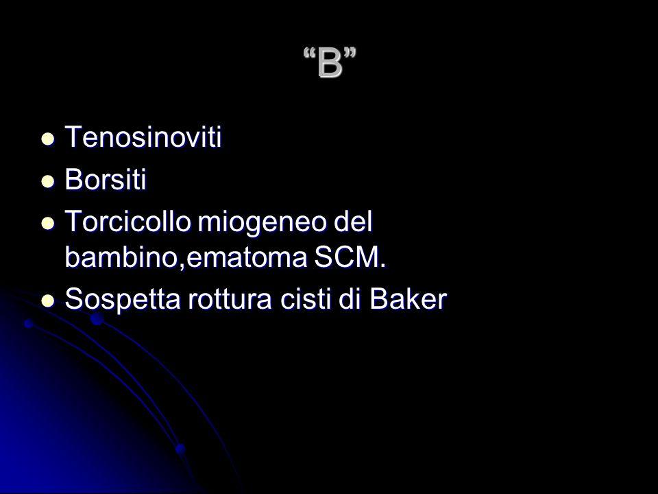 B Tenosinoviti Borsiti Torcicollo miogeneo del bambino,ematoma SCM.
