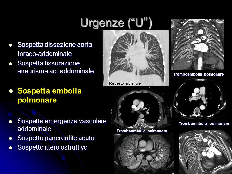 Urgenze ( U ) Sospetta embolia polmonare Sospetta dissezione aorta