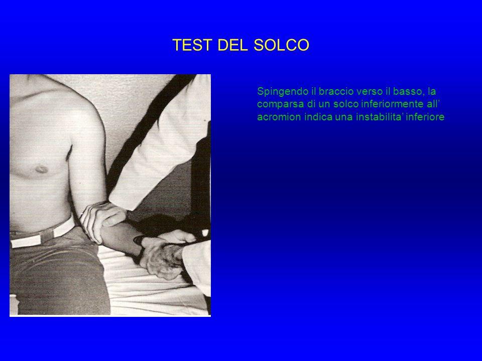 TEST DEL SOLCO Spingendo il braccio verso il basso, la comparsa di un solco inferiormente all' acromion indica una instabilita' inferiore.