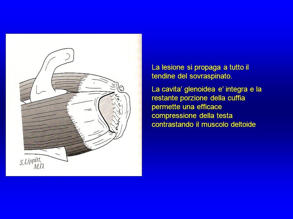 La lesione si propaga a tutto il tendine del sovraspinato.