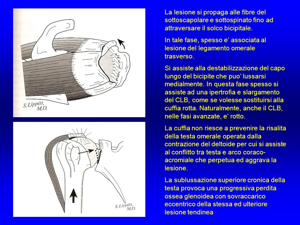 La lesione si propaga alle fibre del sottoscapolare e sottospinato fino ad attraversare il solco bicipitale.
