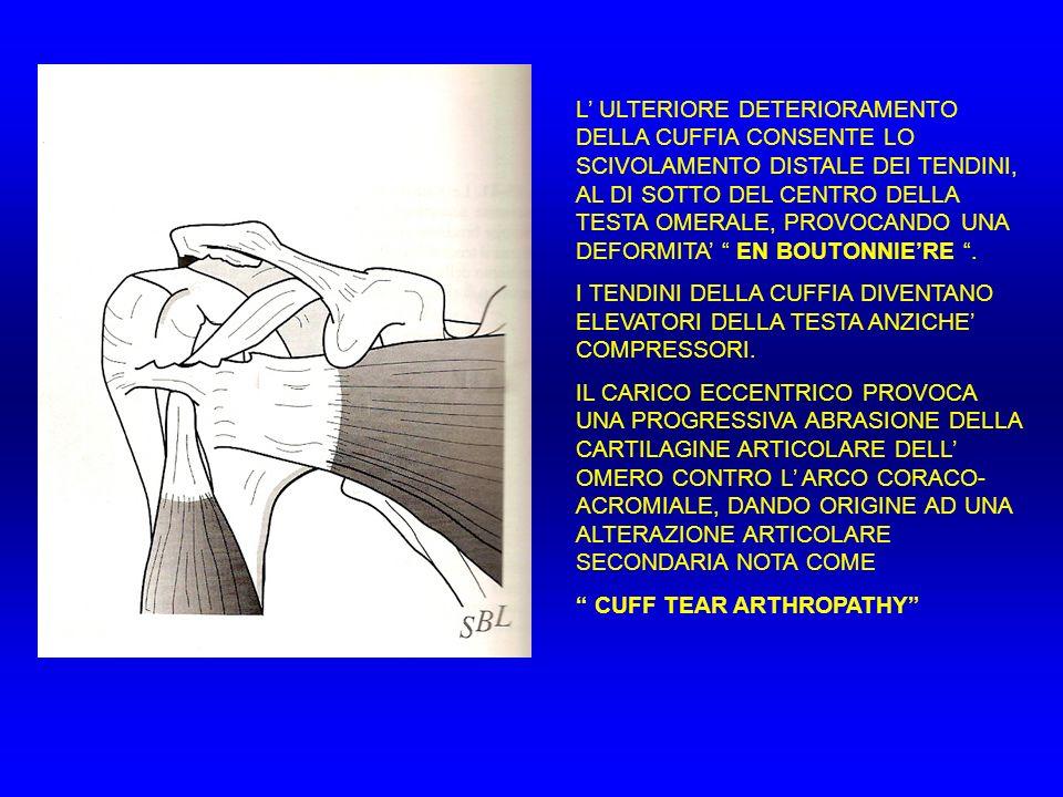 L' ULTERIORE DETERIORAMENTO DELLA CUFFIA CONSENTE LO SCIVOLAMENTO DISTALE DEI TENDINI, AL DI SOTTO DEL CENTRO DELLA TESTA OMERALE, PROVOCANDO UNA DEFORMITA' EN BOUTONNIE'RE .