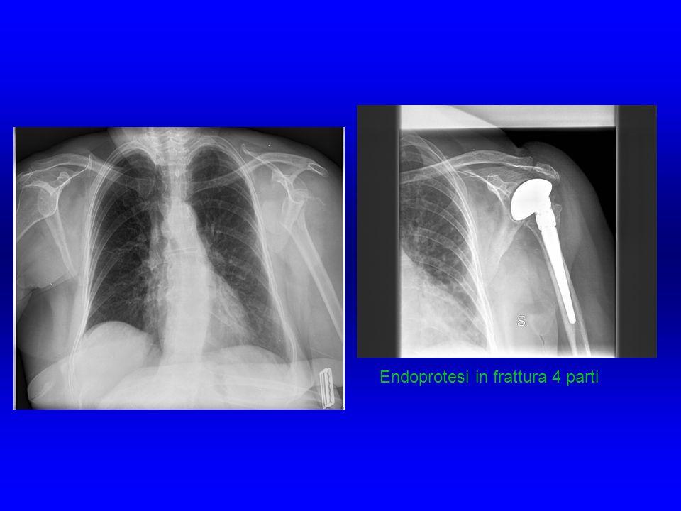 Endoprotesi in frattura 4 parti
