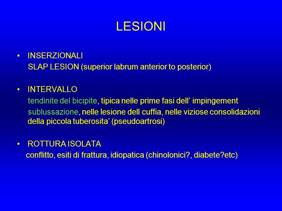 LESIONI INSERZIONALI. SLAP LESION (superior labrum anterior to posterior) INTERVALLO.