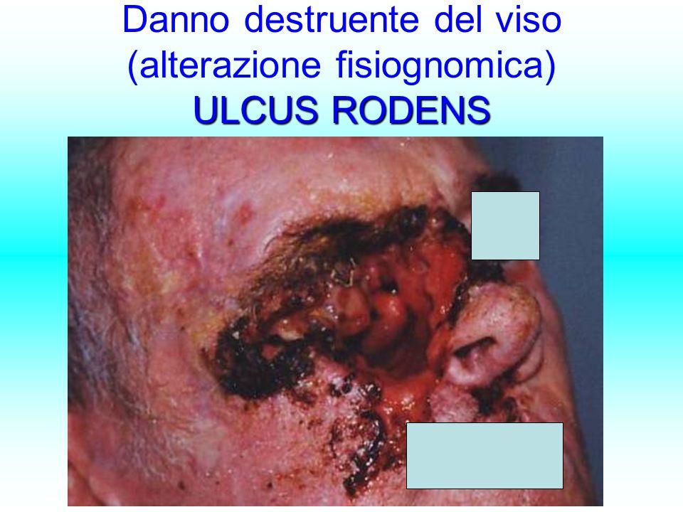 Danno destruente del viso (alterazione fisiognomica) ULCUS RODENS