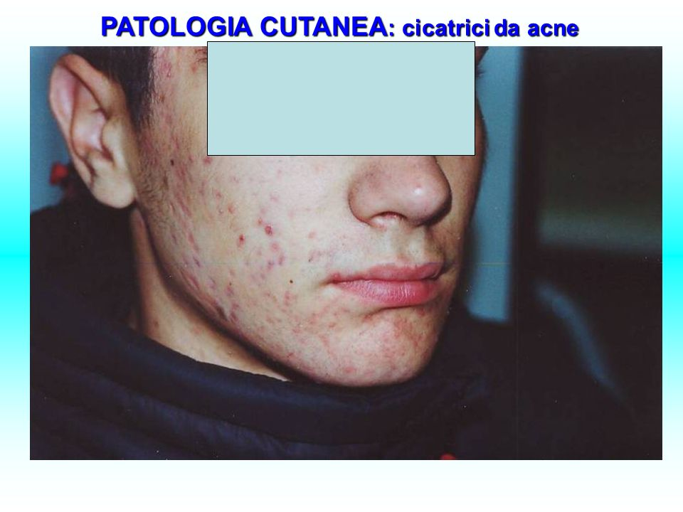 PATOLOGIA CUTANEA: cicatrici da acne