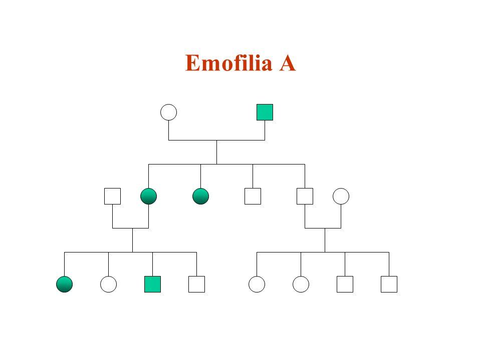 Emofilia A