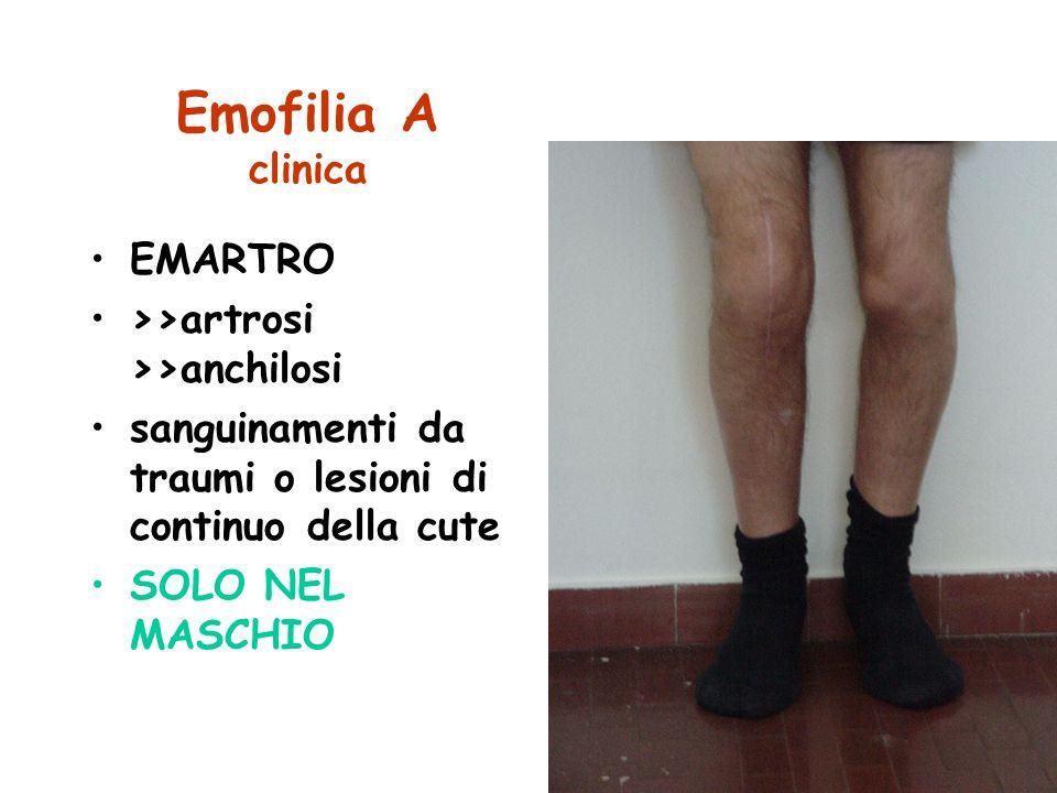 Emofilia A clinica EMARTRO >>artrosi >>anchilosi