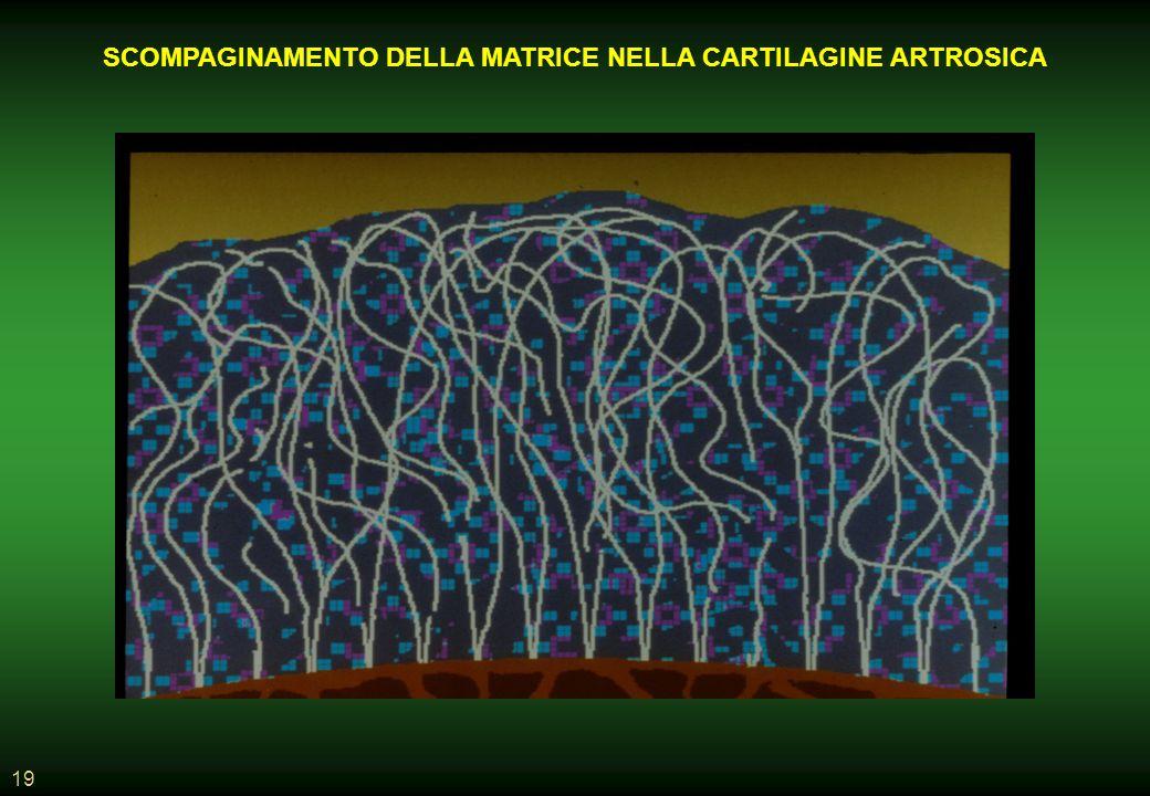 SCOMPAGINAMENTO DELLA MATRICE NELLA CARTILAGINE ARTROSICA