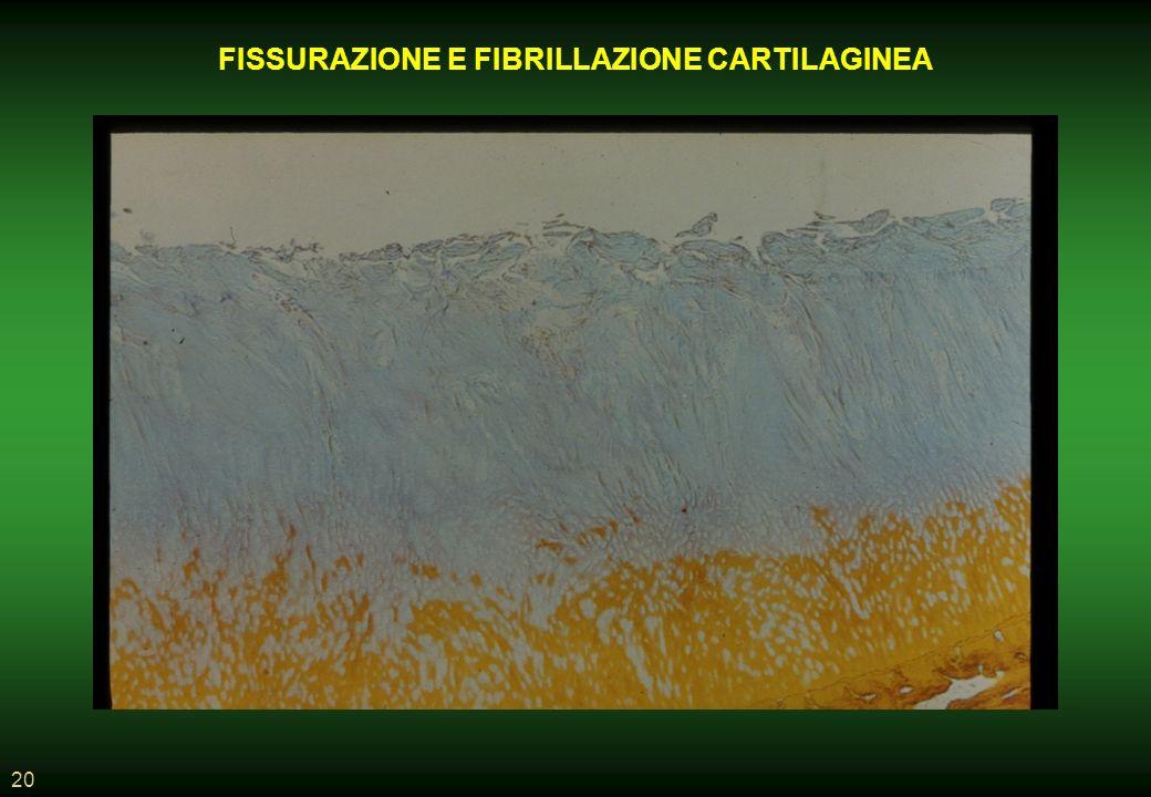 FISSURAZIONE E FIBRILLAZIONE CARTILAGINEA