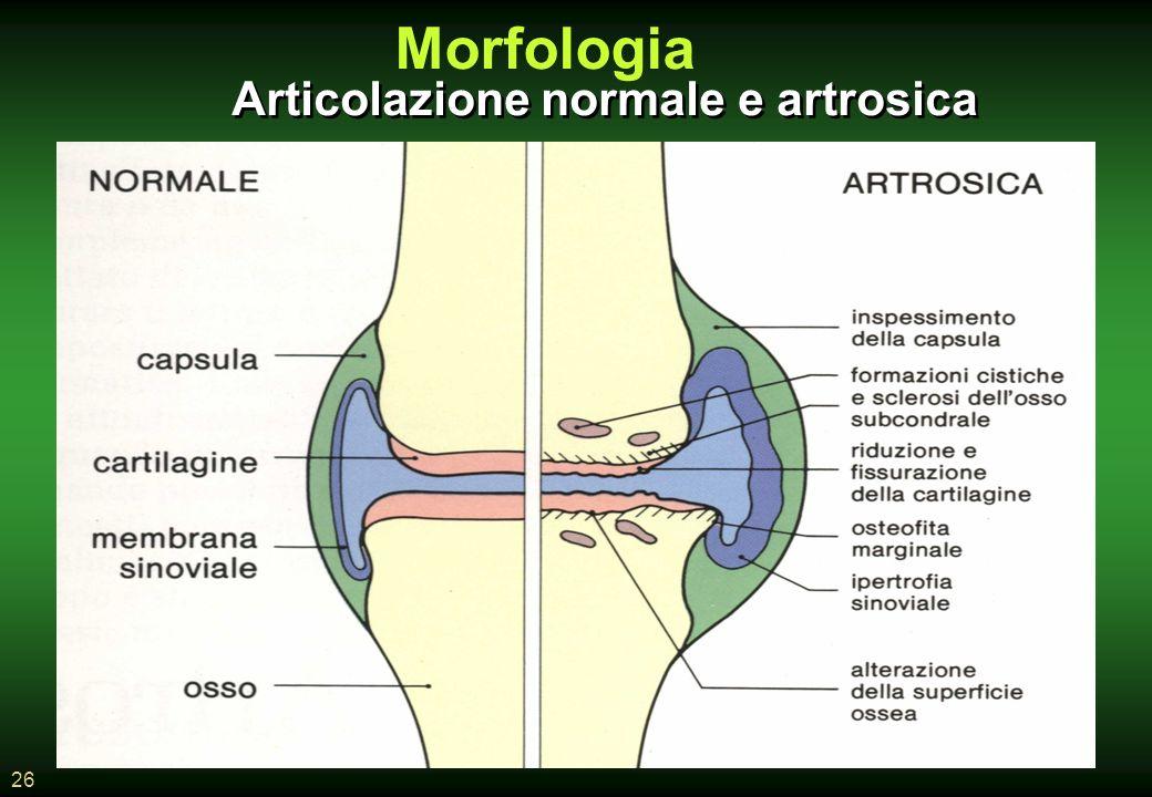 Morfologia Articolazione normale e artrosica