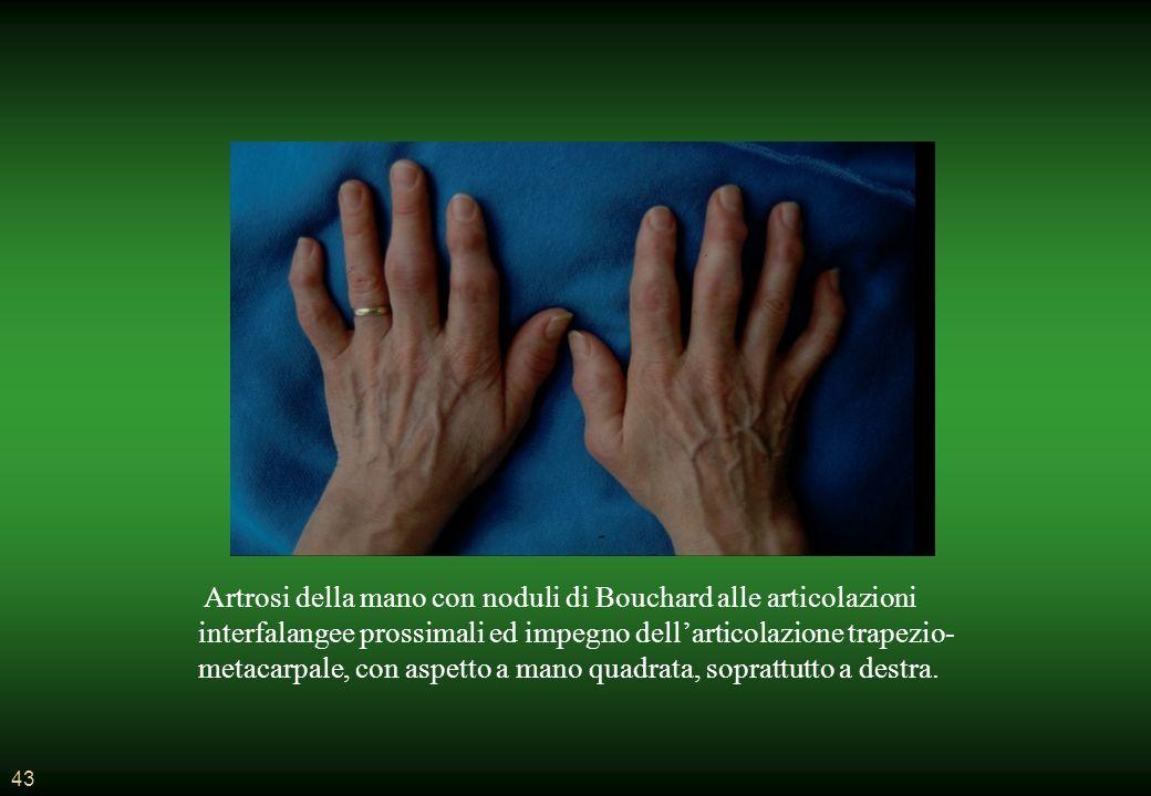 Artrosi della mano con noduli di Bouchard alle articolazioni interfalangee prossimali ed impegno dell'articolazione trapezio-metacarpale, con aspetto a mano quadrata, soprattutto a destra.