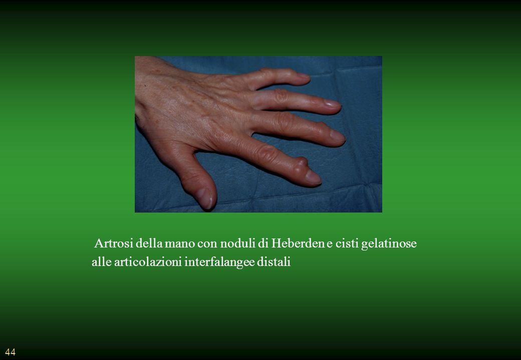 Artrosi della mano con noduli di Heberden e cisti gelatinose alle articolazioni interfalangee distali