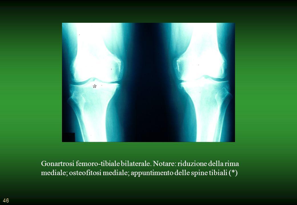 * Gonartrosi femoro-tibiale bilaterale.