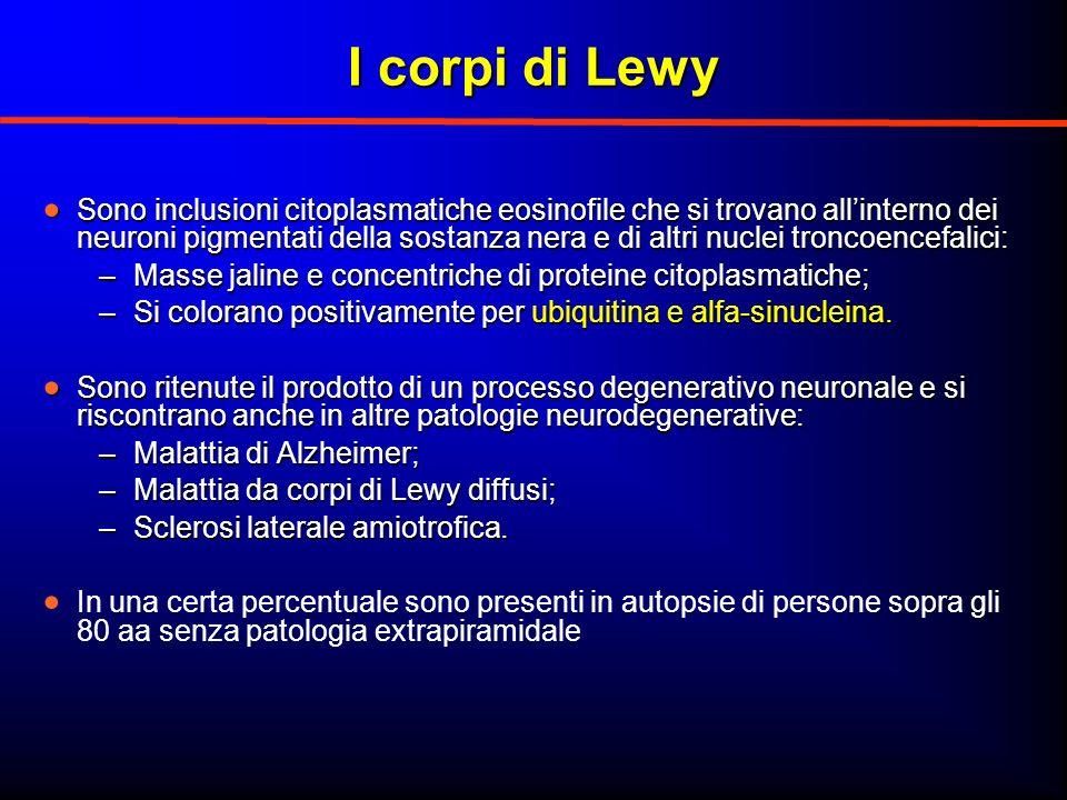 I corpi di Lewy