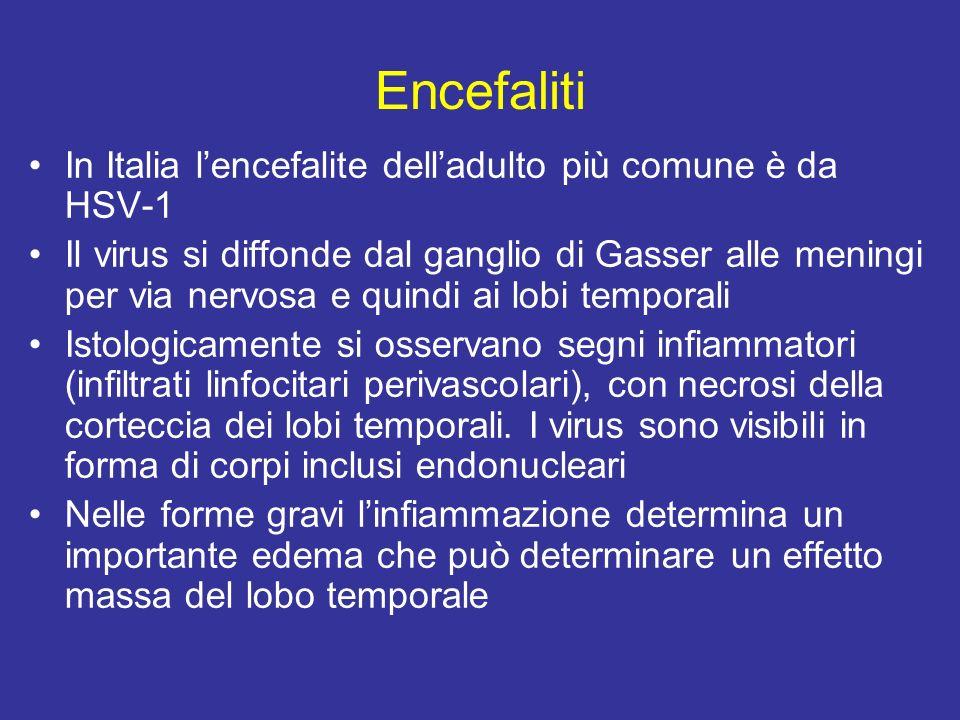 Encefaliti In Italia l'encefalite dell'adulto più comune è da HSV-1