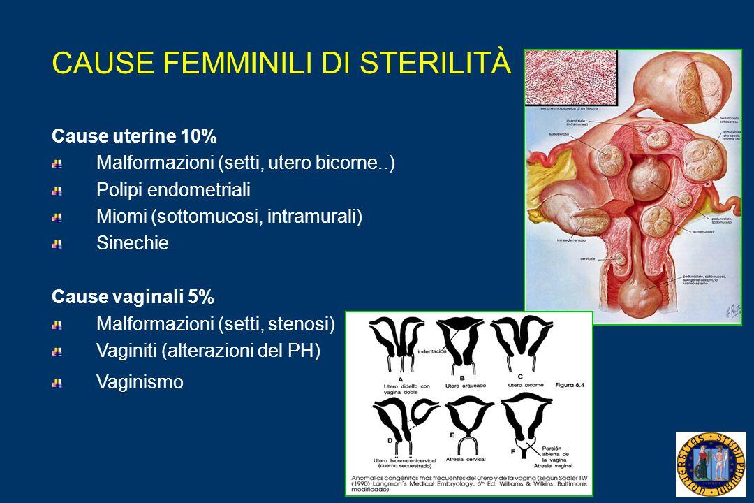 CAUSE FEMMINILI DI STERILITÀ