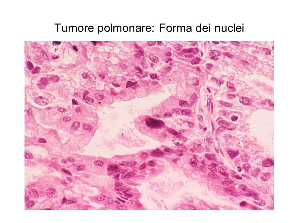 Tumore polmonare: Forma dei nuclei