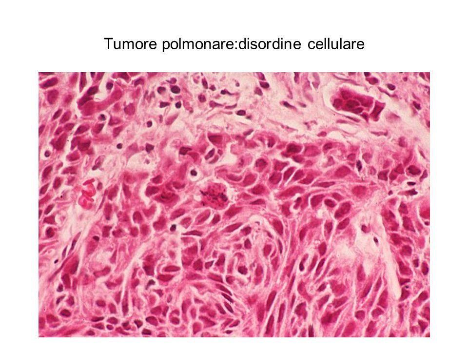 Tumore polmonare:disordine cellulare