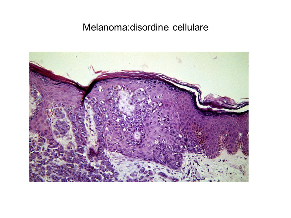 Melanoma:disordine cellulare