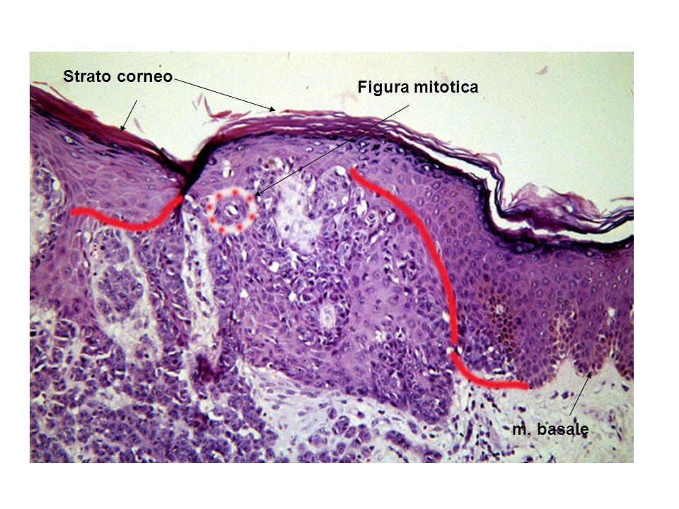 Strato corneo Figura mitotica m. basale
