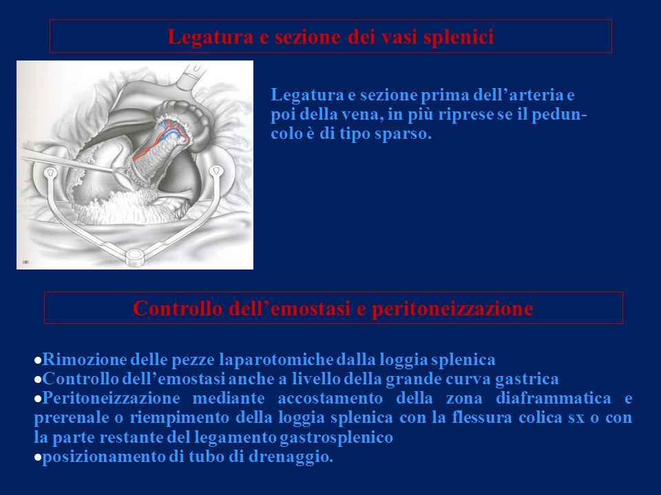 Legatura e sezione dei vasi splenici