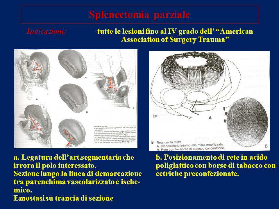 Splenectomia parziale