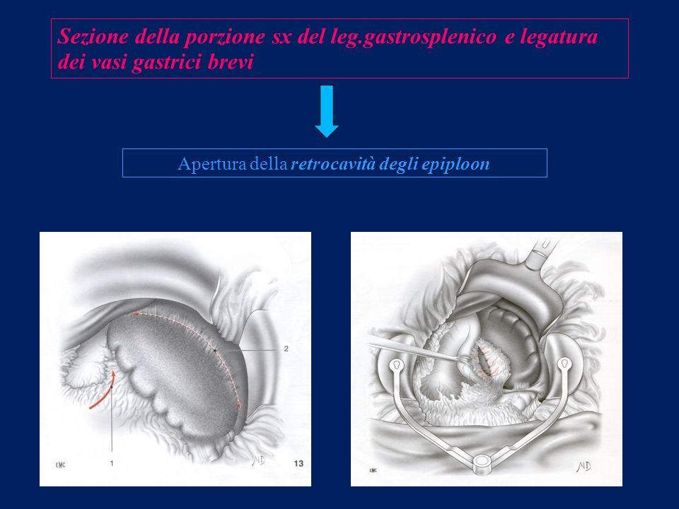 Apertura della retrocavità degli epiploon
