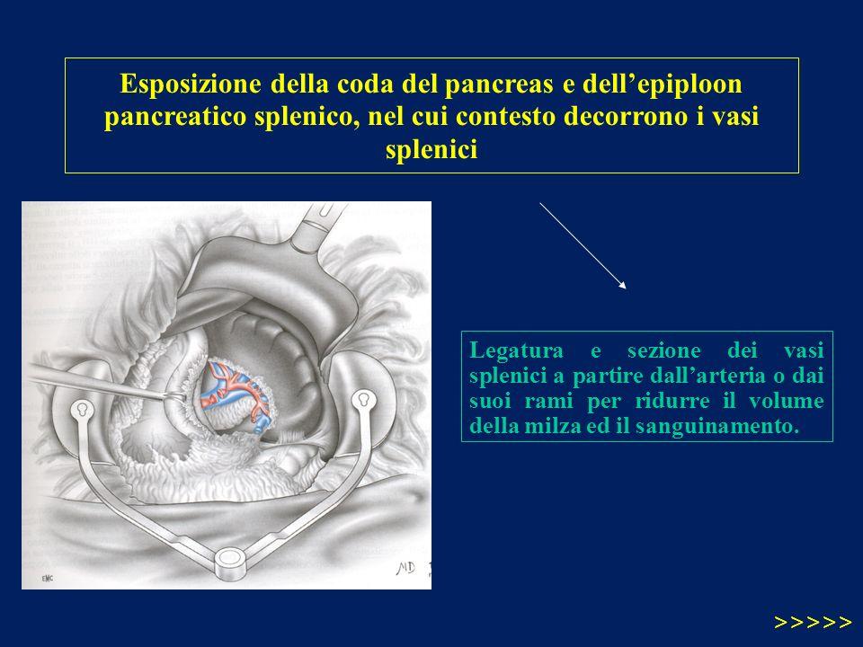 Esposizione della coda del pancreas e dell'epiploon pancreatico splenico, nel cui contesto decorrono i vasi splenici