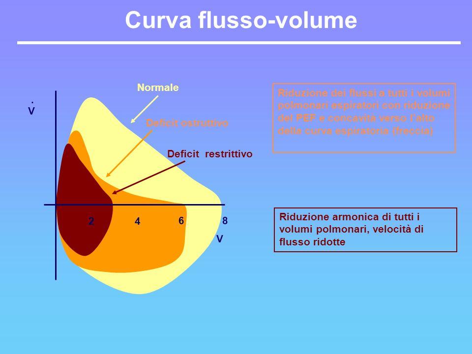 Curva flusso-volume Normale