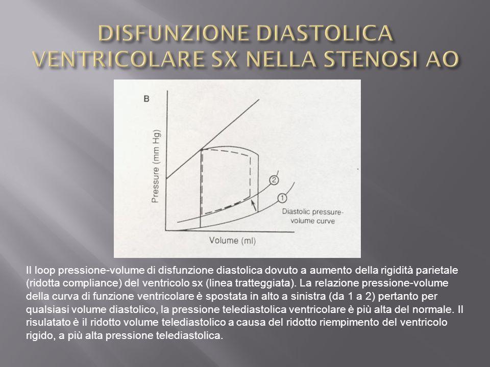 DISFUNZIONE DIASTOLICA VENTRICOLARE SX NELLA STENOSI AO