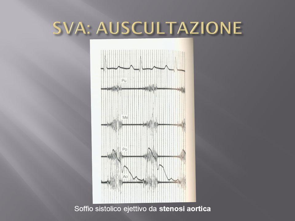 SVA: AUSCULTAZIONE Soffio sistolico ejettivo da stenosi aortica